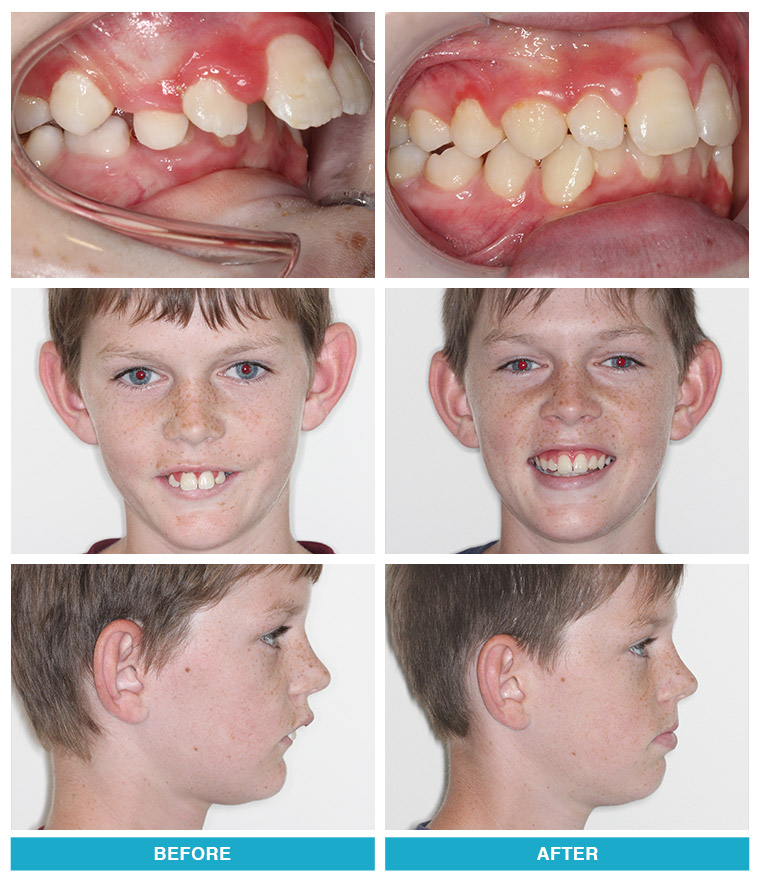 Before And After Photos Greater Springfield Orthodontics